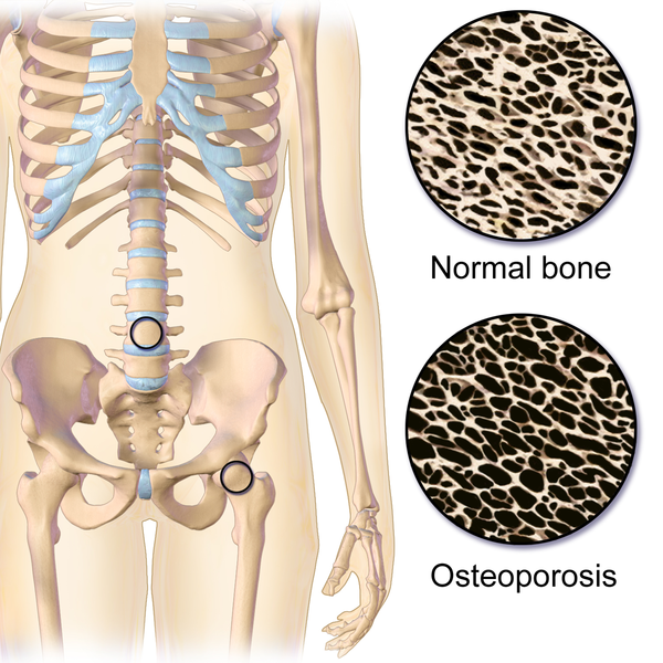 A Bone To Pick With Osteoporosis