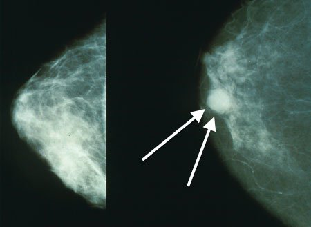 Breast Cancer Subtypes